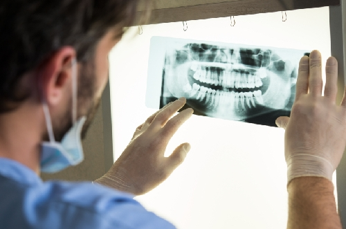 Antidepressants and Dental Implant