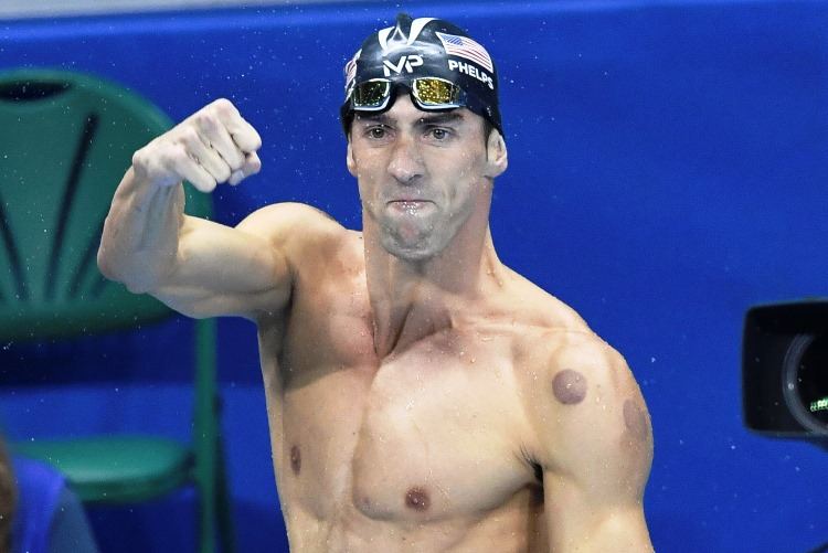 Michael Phelps Rio 2016 Chinese Cupping Therapy