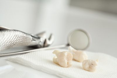 Reduce Tooth Pain